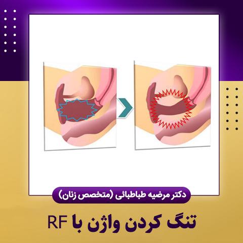 تنگ کردن واژن با RF