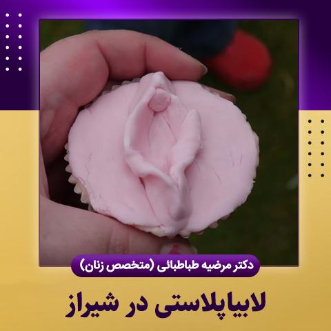 لابیاپلاستی در شیراز