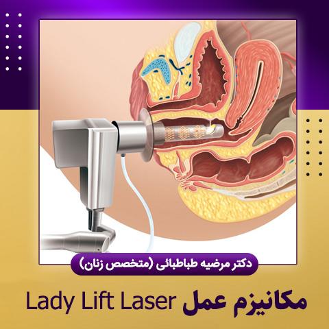 مکانیزم عمل Lady Lift Laser