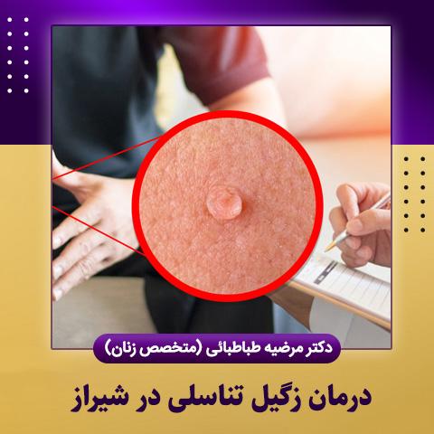 درمان زگیل تناسلی در شیراز