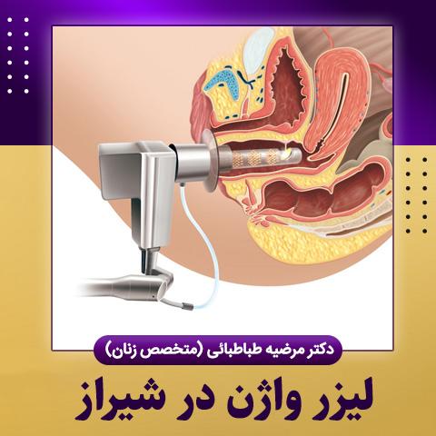 لیزر واژن در شیراز