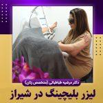 لیزر بلیچینگ در شیراز